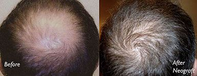 Best Neograft Long Island Before and After Crown Bald Spot