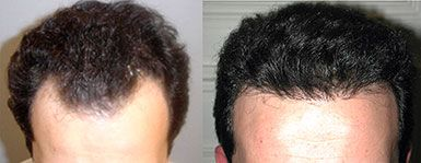 Hair Transplant Long Island Before and After