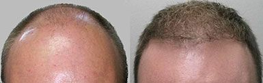 Hair Transplant Neograft New York Before and After