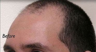 Neograft Long Island Before Receding Hairline Patient