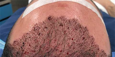 hair transplant patient after photo