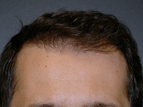 hair transplant patient before after photo