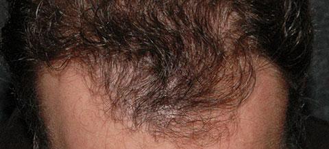 hair rejuvenation patient before photo
