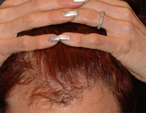 hair restoration after plastic surgery before